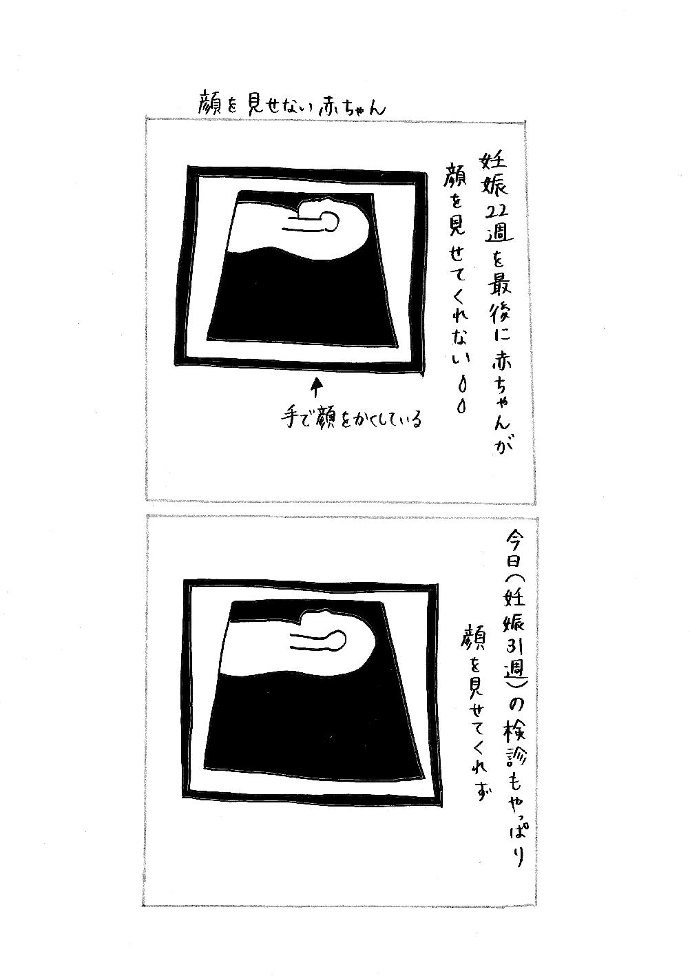 エコー写真.jpg
