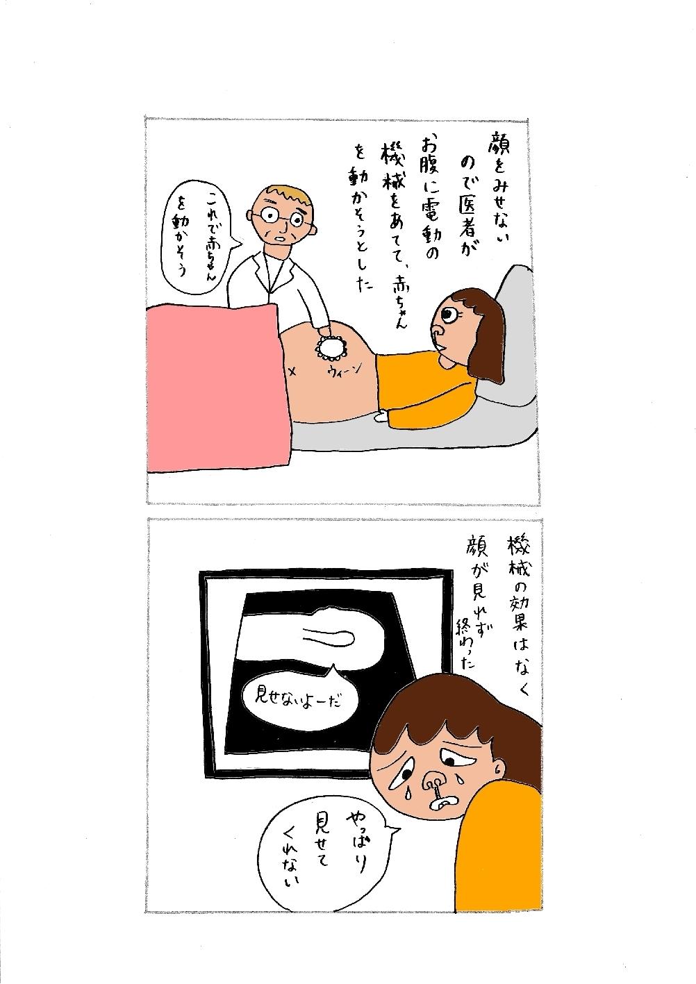 エコー写真2.jpg